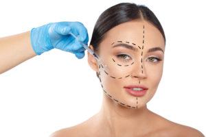 תיאור ויזואלי של מתיחת עור הפנים